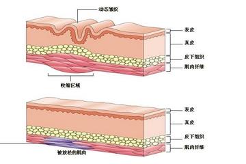 除皱针的危害和副作用