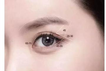 美莱整形美容双眼皮案例