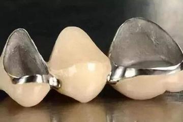 【拜托了,医生】烤瓷牙和全瓷牙有什么区别?