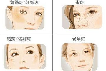 激光祛斑之后皮肤会变薄吗?