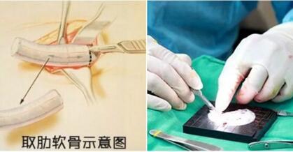 美莱整形鼻综合手术