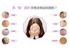 上海美莱Medlite C6激光祛斑特惠