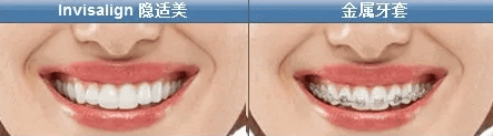 上海美莱口腔隐适美牙齿矫正