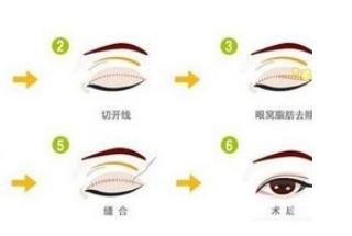 双眼皮术多少钱